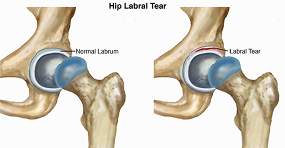 Hip Labral Tear Sports Medicine Doctor Mesa Az Orthopedic Surgeon