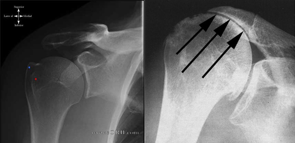 Rotator Cuff Tear Arthropathy